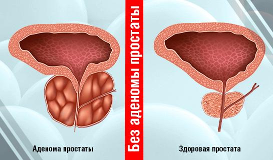 Лечение аденомы простаты кровь в моче